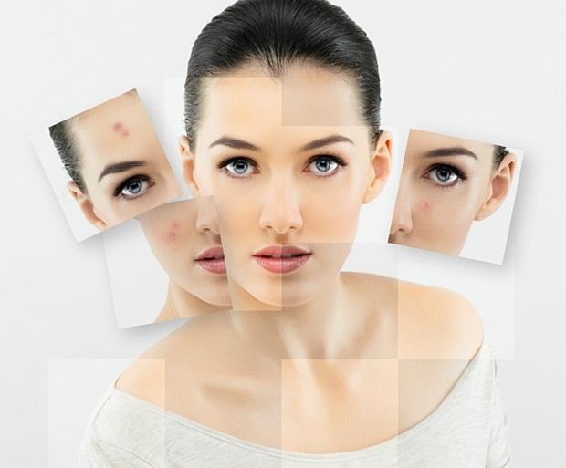 acne-03