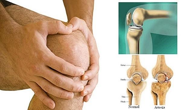 artroza koljena vježbe tratamente pentru artroza la genunchi