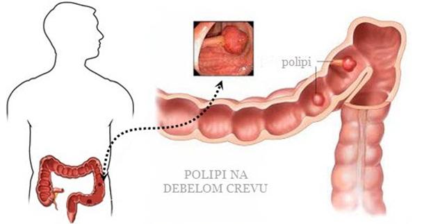 polipi_na_debelom_crevu_simptomi