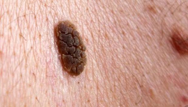 melanom