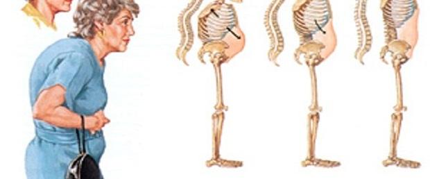 osteoporoza-600x250