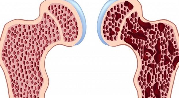 Osteoporoza-e1430767647389-600x360