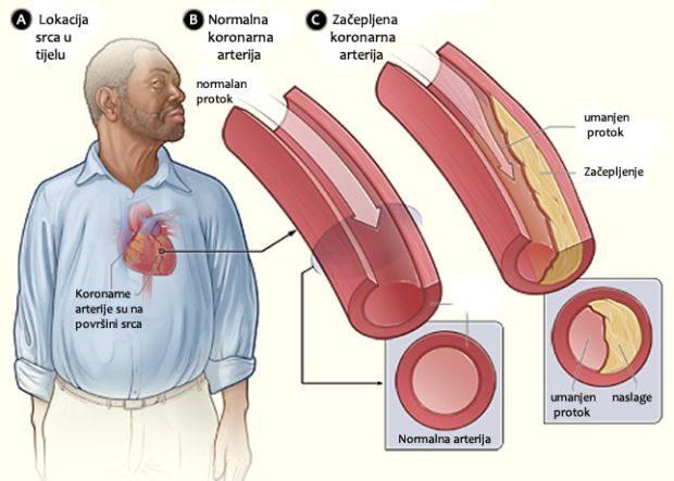 koronarne-arterije